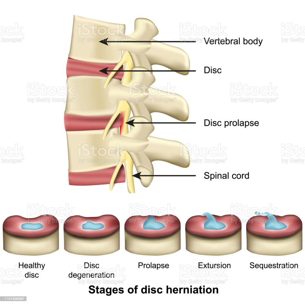 stages of disc herniation spine and disc anatomy 3d medical vector...