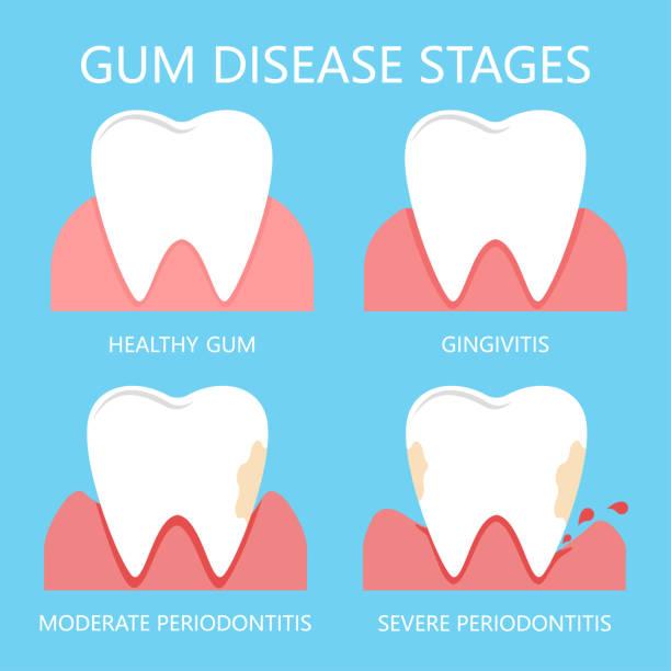 stockillustraties, clipart, cartoons en iconen met stadia van tandvlees ziekte - tandvleesontsteking