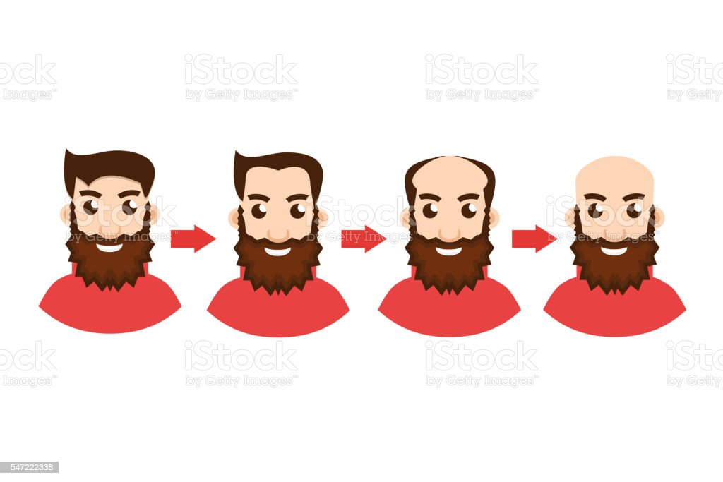 Stages Of Hair Loss with arrow vector art illustration