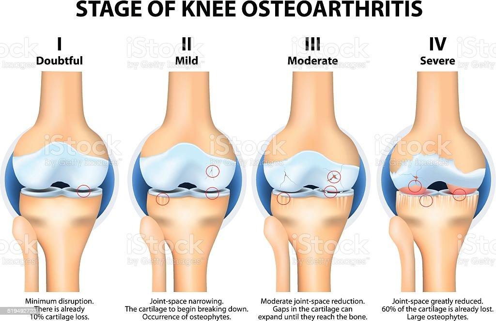 Stages of knee Osteoarthritis (OA). vector art illustration
