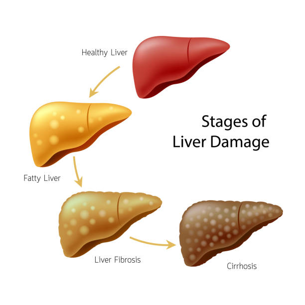 Stages of liver damage. Liver Disease. vector art illustration