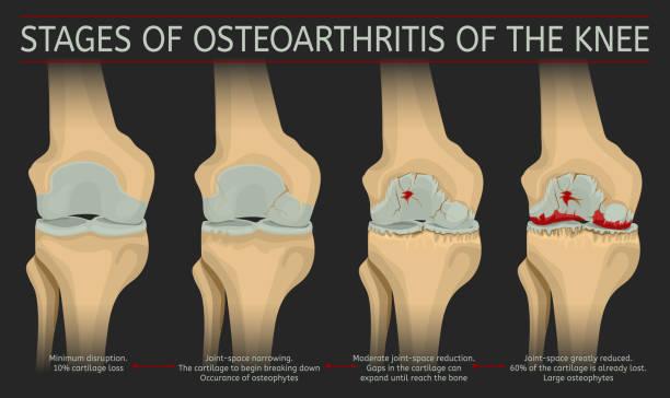 illustrazioni stock, clip art, cartoni animati e icone di tendenza di stages of osteoarthritis of the knee - impastare