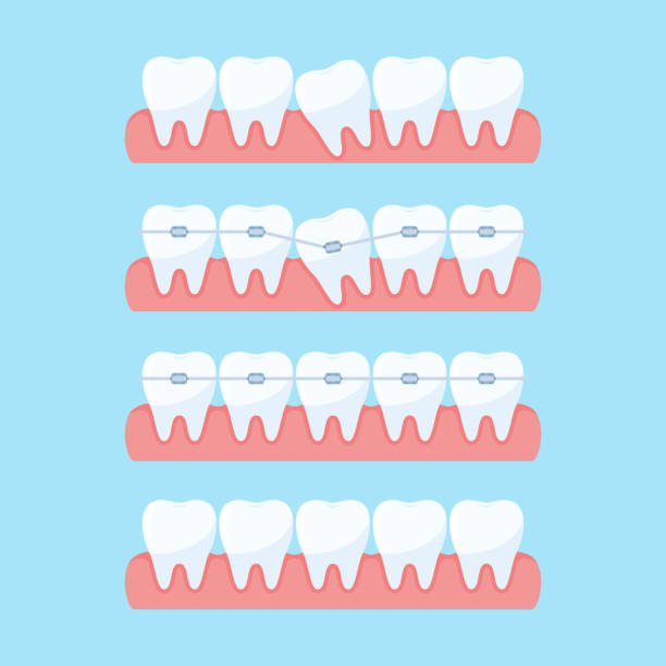 Stages of teeth alignment vector art illustration