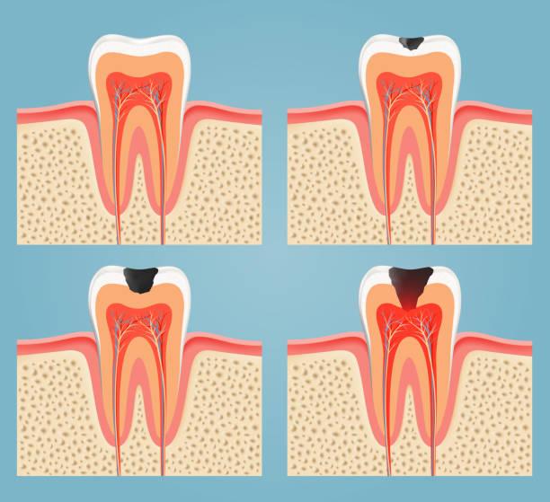 stockillustraties, clipart, cartoons en iconen met stages of tooth decay - dentine