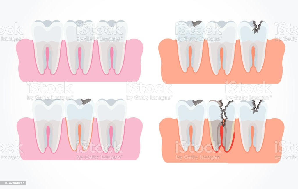 Stages Of Tooth Decay With Caries Dentistry And Oral Care Stock ...