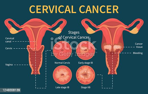 istock Stages of woman cervical cancer infographic scheme 1246558139