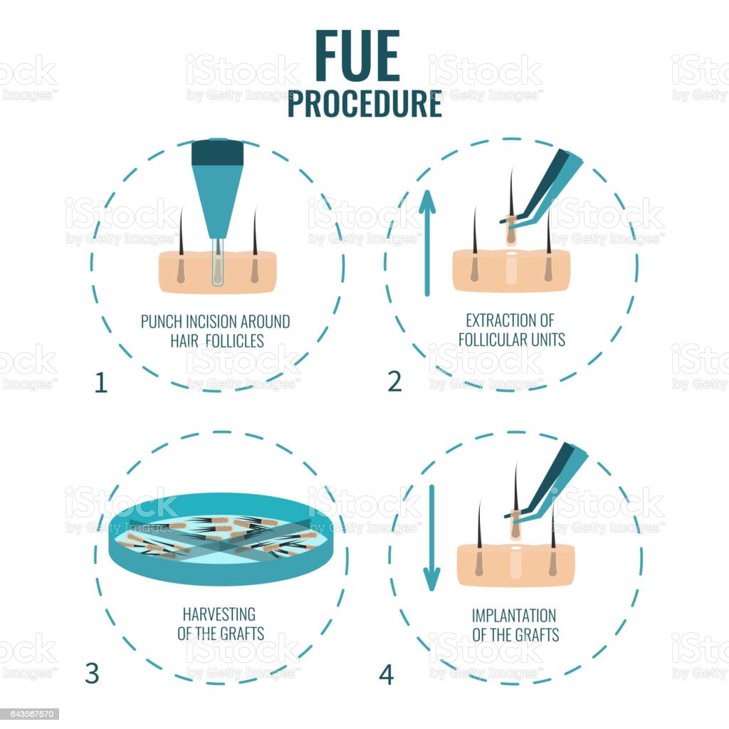 FUE stages treatment vector art illustration