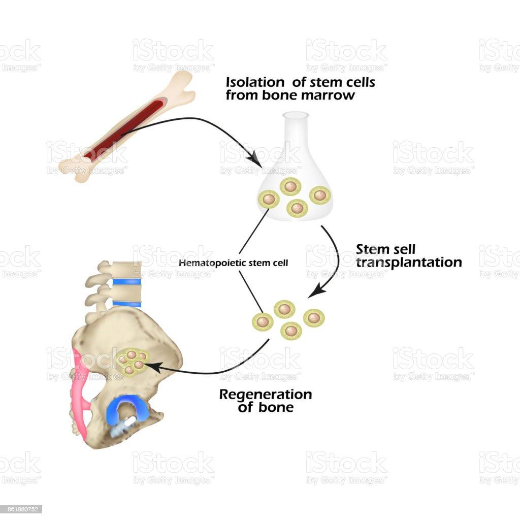 Stem Cells From Bone Marrow Are Used For Bone Regeneration ...