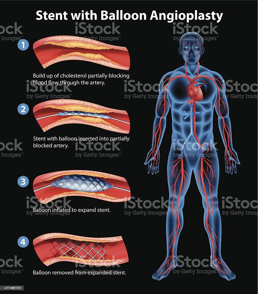 Stent angioplasty procedure vector art illustration