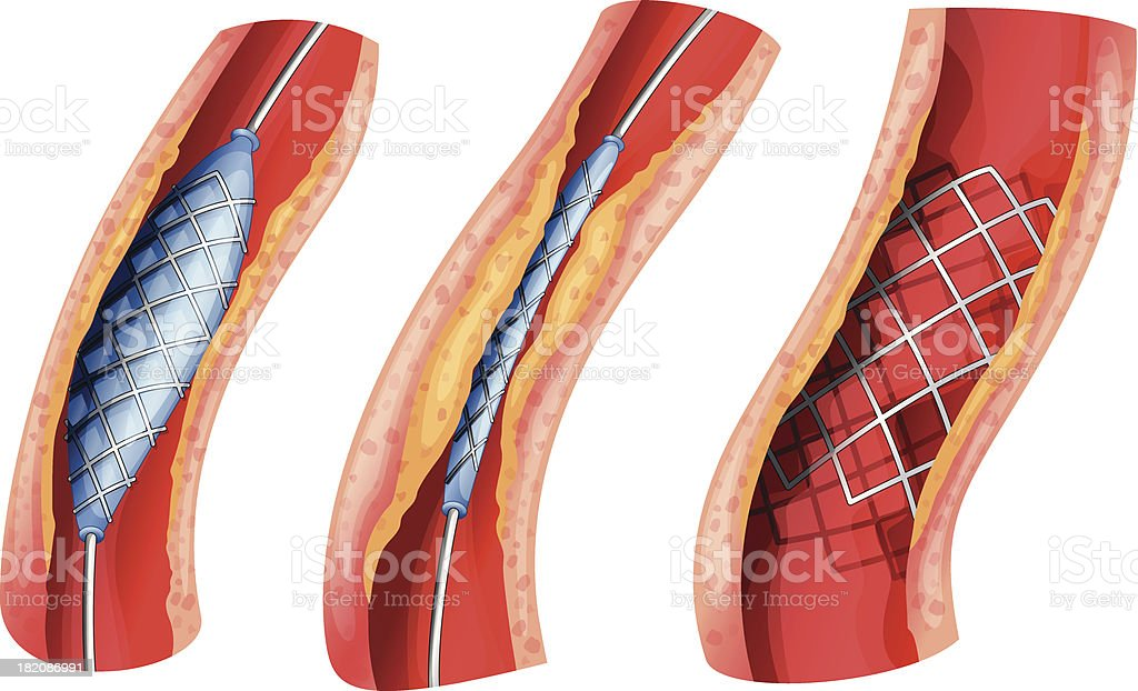 Stent used to open blocked artery royalty-free stock vector art