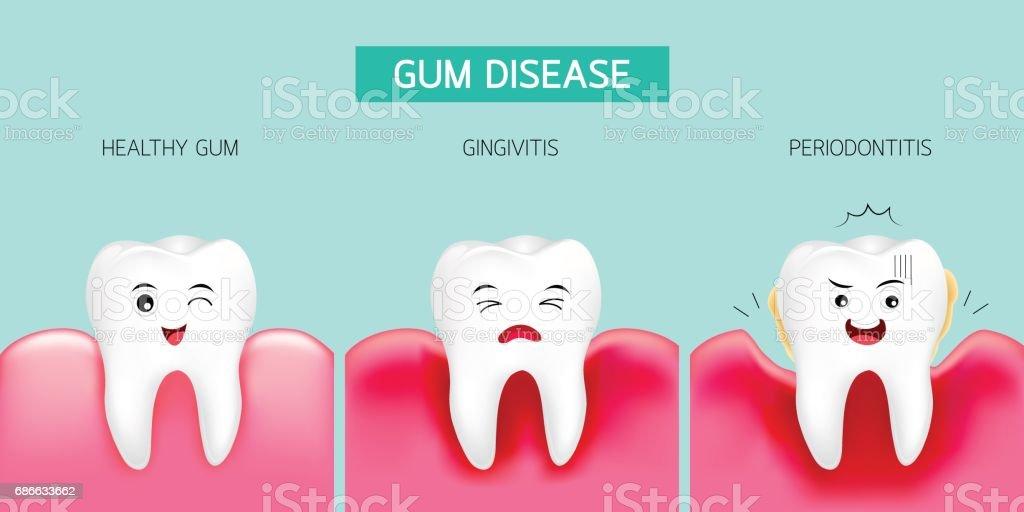 Step of gum disease. Healthy tooth, gingivitis and finally periodontitis. vector art illustration