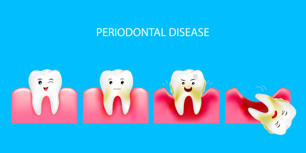 Step of periodontal disease. Healthy tooth and gingivitis. vector art illustration