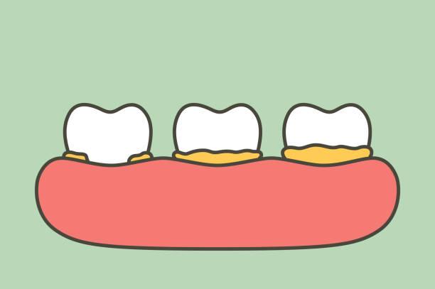bildbanksillustrationer, clip art samt tecknat material och ikoner med steg av plack eller tandsten, orsaken till tand parodontal sjukdom - tandsten