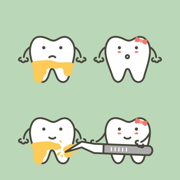 bildbanksillustrationer, clip art samt tecknat material och ikoner med steg av tänder skalning - plackborttagning, före och efter - tandsten