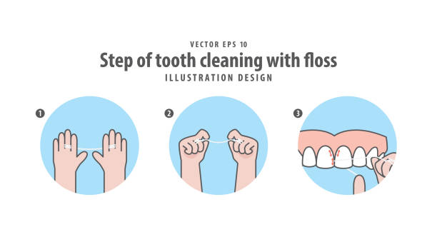 ilustrações de stock, clip art, desenhos animados e ícones de step of tooth cleaning with floss illustration vector on blue background. dental concept. - boca suja
