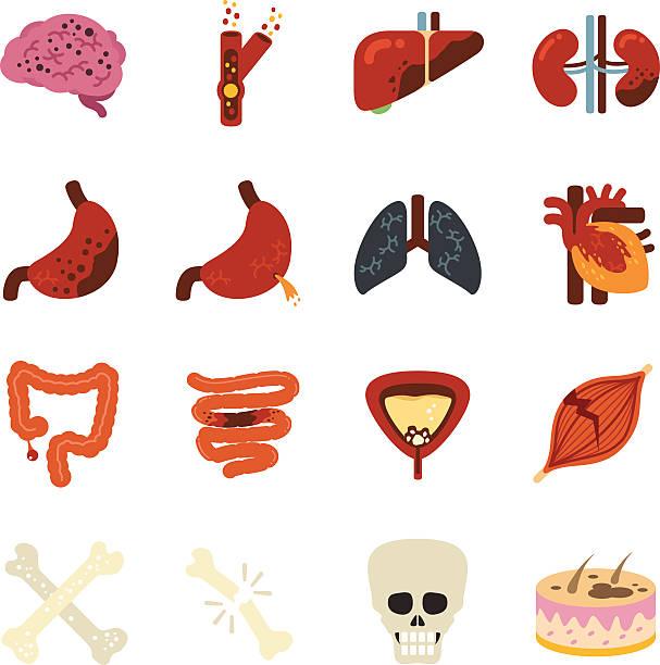 Stock Vector Illustration: Disease vector art illustration