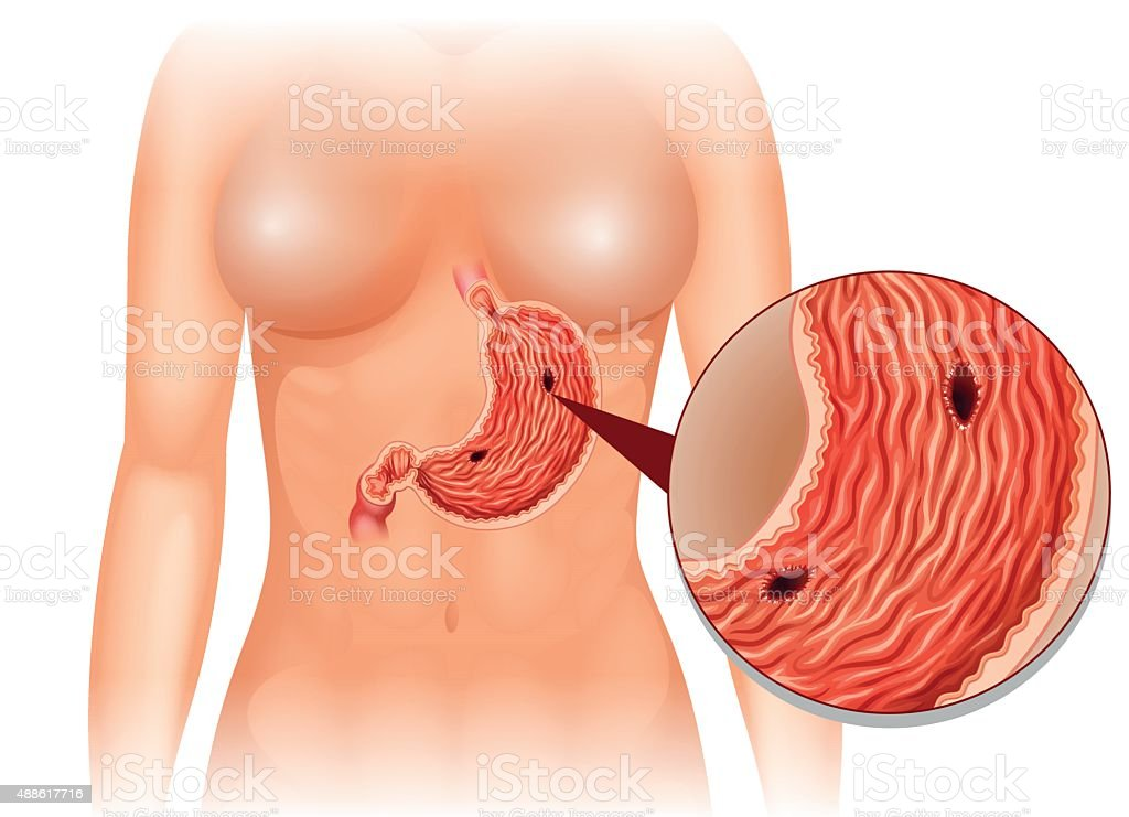 stomach ulcer diagram in woman vector id488617716 stomach ulcer diagram in woman stock vector art & more images of
