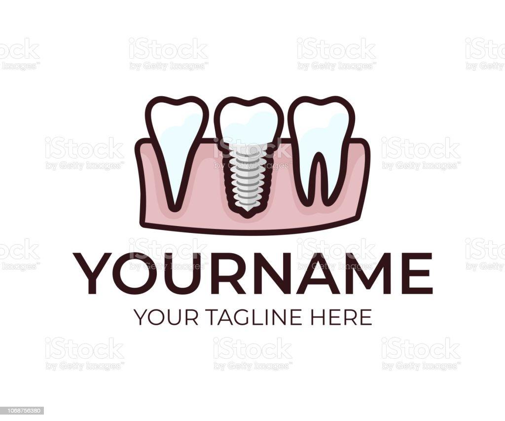 Stomatology Dental Implant Denture And Teeth Logo Design Medical Dental Tooth Vector Design Dentistry Illustration Stock Illustration Download Image Now Istock