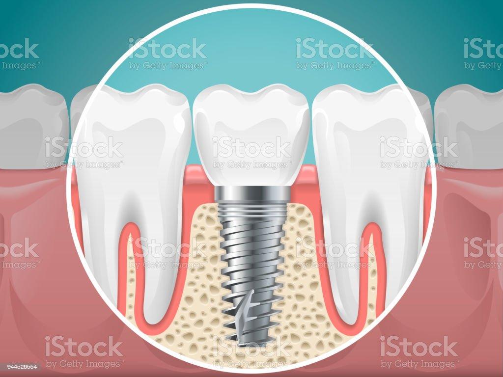 Stomatology Illustrations Dental Implants And Healthy Teeth
