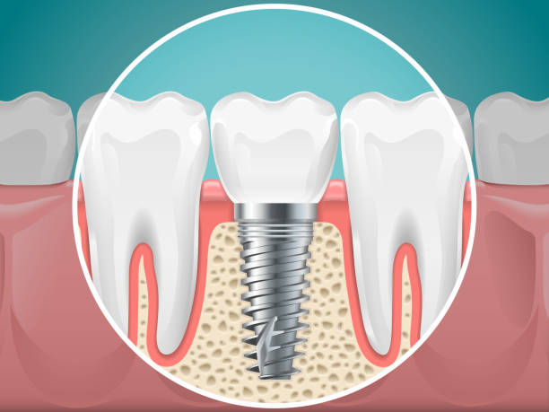 Imagini pentru dental implant