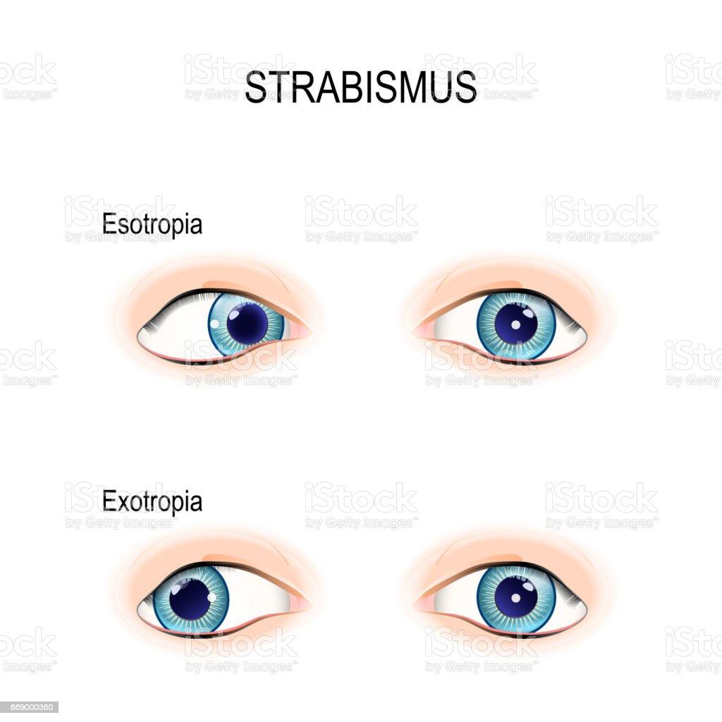 Strabismus Gekreuzte Augen Stock Vektor Art und mehr Bilder von ...