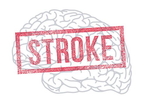 Stroke Brain Damage Rubber Stamp Neurological Disease