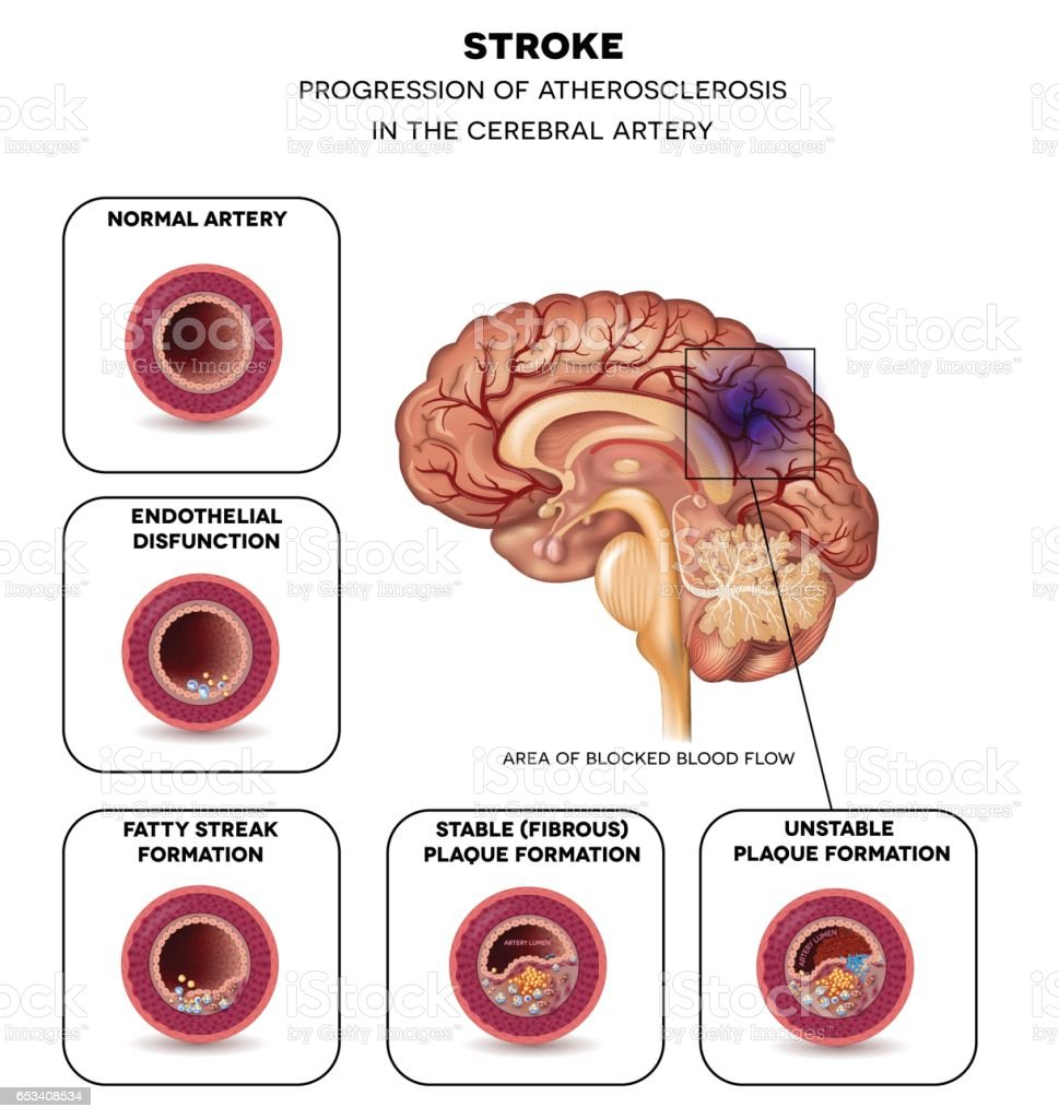 Stroke In The Brain Artery Stock Vector Art & More Images of Anatomy ...