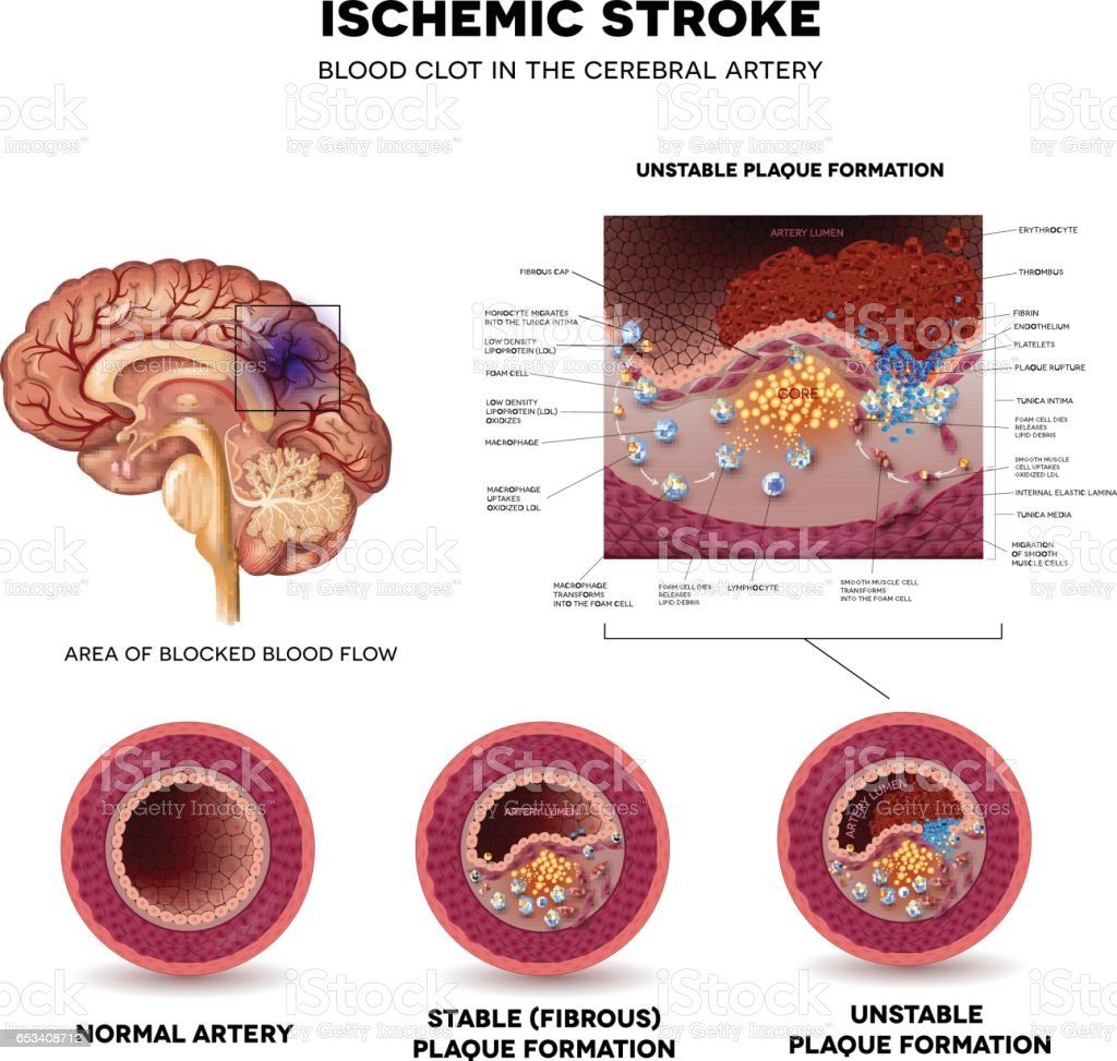 Stroke vector art illustration