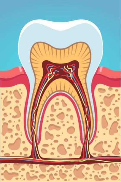 stockillustraties, clipart, cartoons en iconen met structuur cross sectie van grinder tand weergegeven: glazuur, dentine, pulp, zenuwen, root grachten. infographic poster. tandarts met het visuele hulpmiddel. vlakke geïsoleerde vector - dentine
