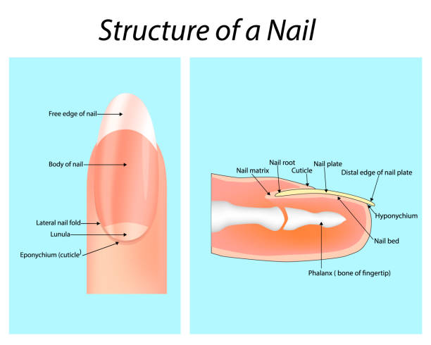 Bed in nail What Are