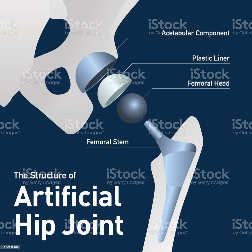 structure of the artificial hip joint, vector illustration vector art illustration
