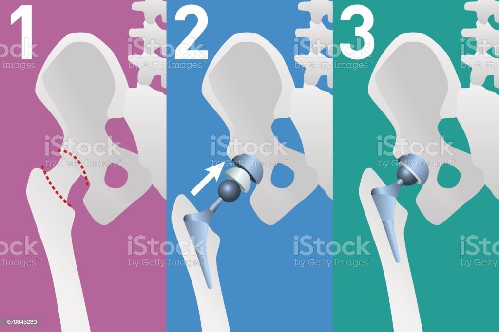 Structure Of The Artificial Hip Joint Vector Illustration Stock