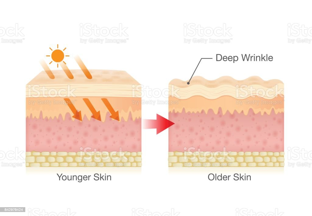 Sunlight makes sagging skin. vector art illustration
