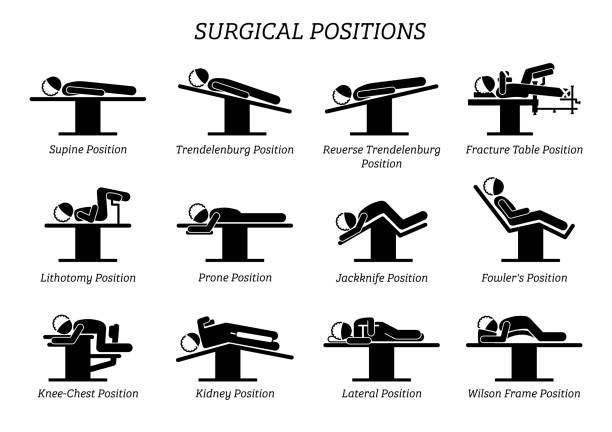 Surgical Surgery Operation Positions. Stick figures depict a set of surgery positions for the patient on the surgery chair and bed. lying on back stock illustrations