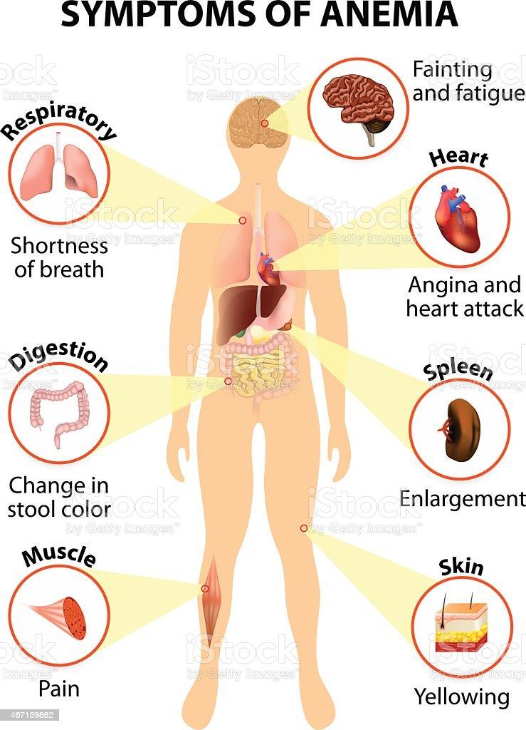 symptoms of anemia vector art illustration