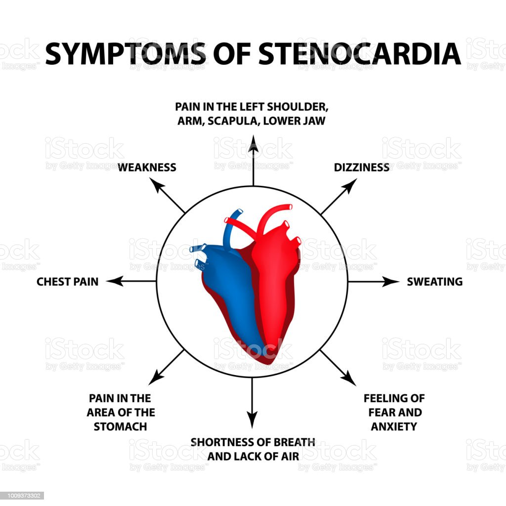Sintomas de angina de pecho
