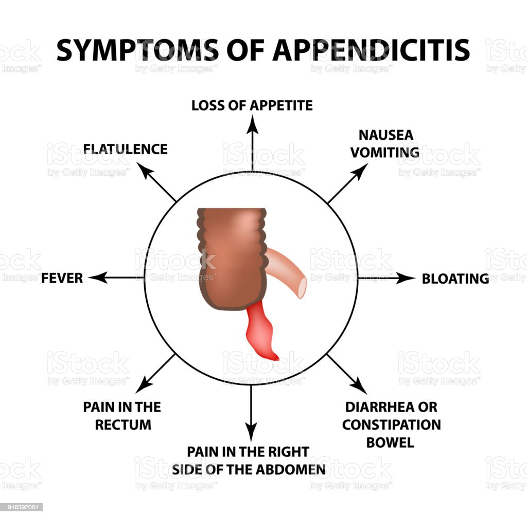 Symptoms of appendicitis. Inflammation of the appendix. Infographics. Vector illustration on isolated background. vector art illustration