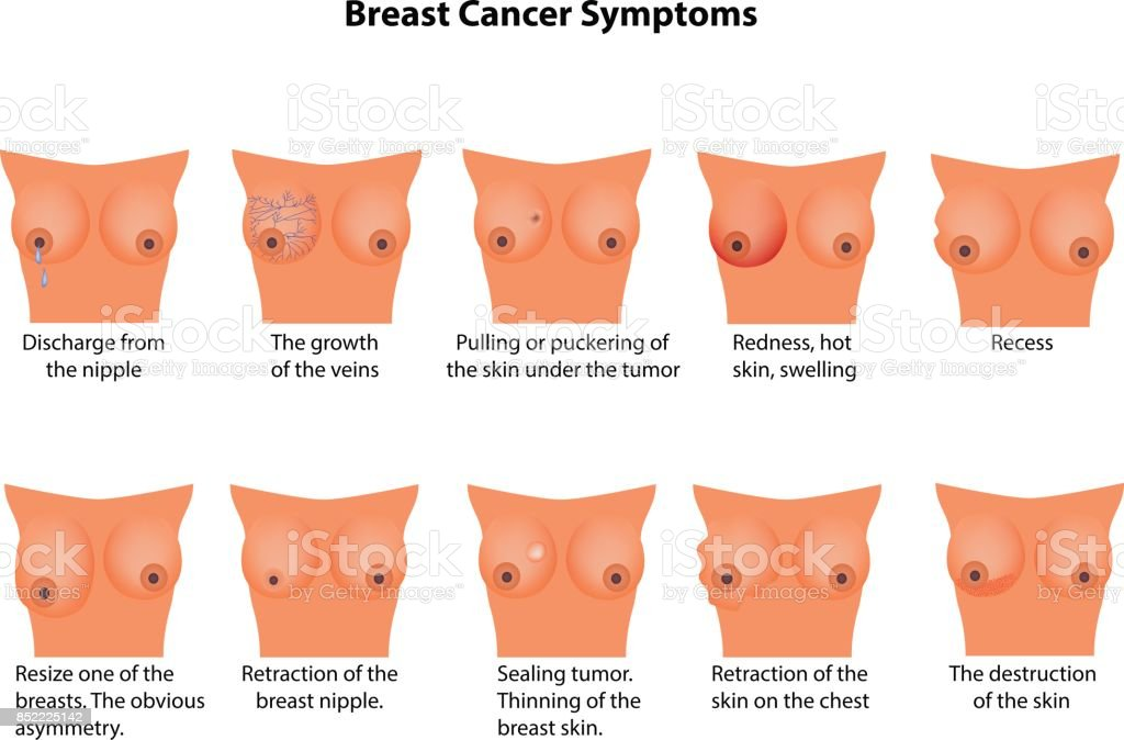 Symptoms Of Breast Cancer Infographics Vector Illustration On ...