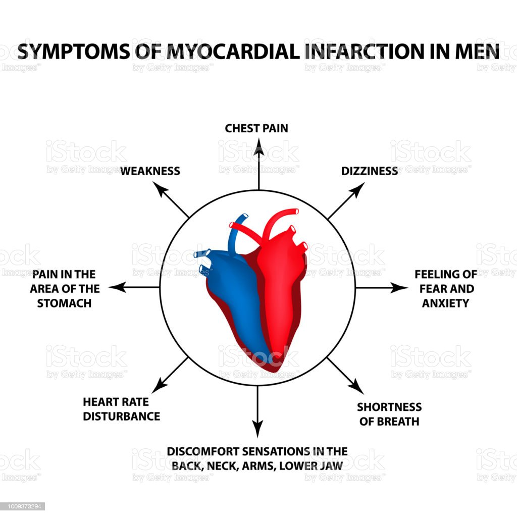 Symptoms Of Myocardial Infarction In Men A Heart Attack World Heart ...