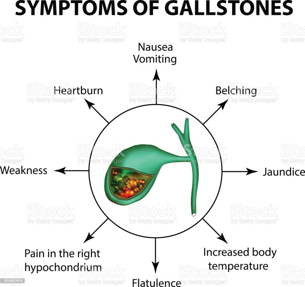 Symptoms Of Stones In The Gallbladder Infographics Vector