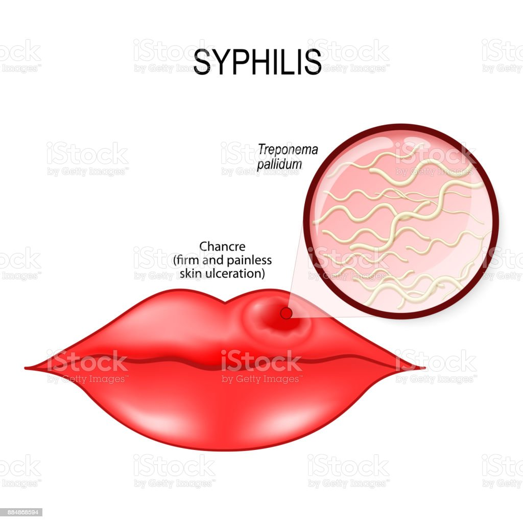 Syphilis. Human lips with chancre vector art illustration