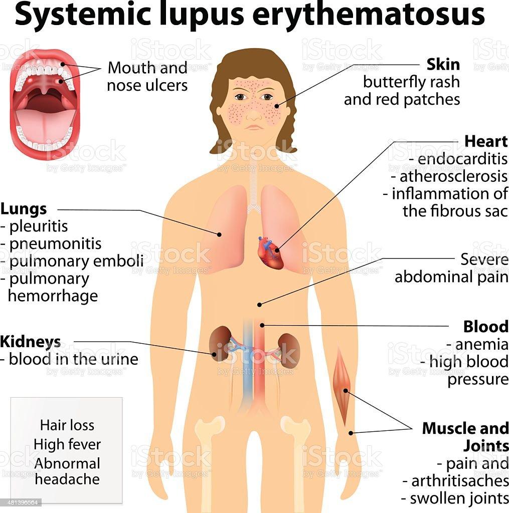 Systemic lupus erythematosu vector art illustration