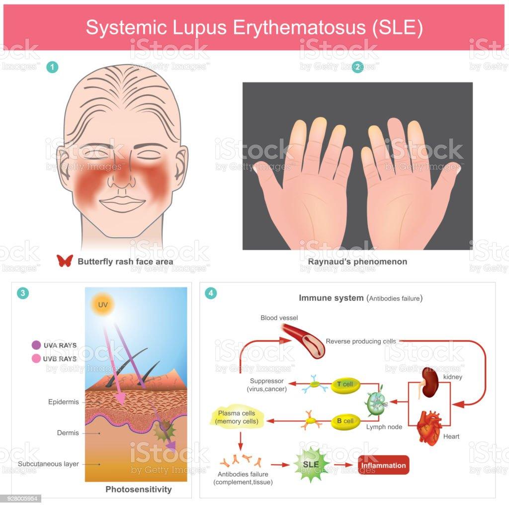 Ilustración de Lupus Eritematoso Sistémico y más banco de imágenes ...