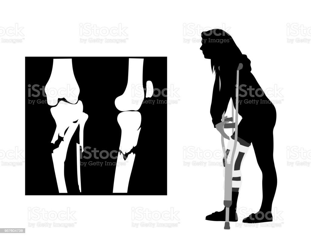 Teen Knee Injury Xray Stock Vector Art & More Images of Anatomy ...