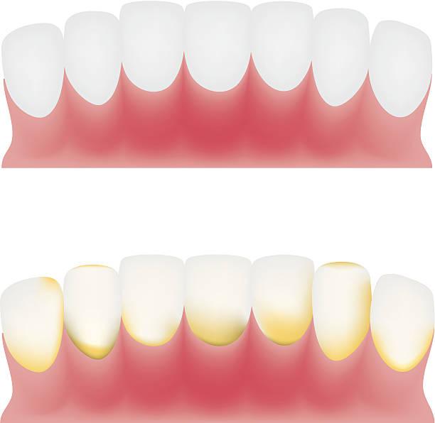bildbanksillustrationer, clip art samt tecknat material och ikoner med teeth and gums - tandsten