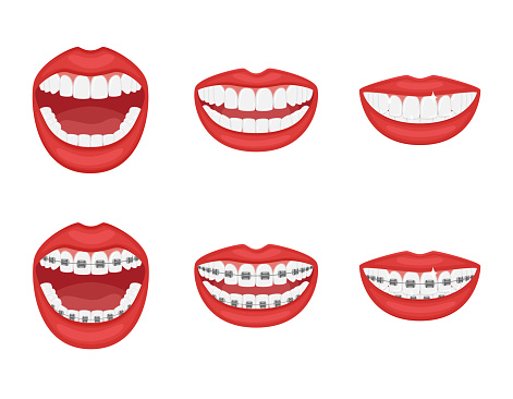 Teeth in the mouth with or without braces.Open and closed mouth with red lips. Aesthetic dentistry.Orthodontic treatment during and after.The alignment of the teeth. Healthy lifestyle. Isolated vector