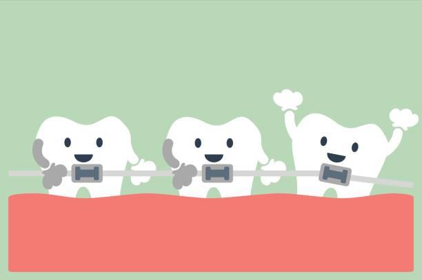 ilustraciones, imágenes clip art, dibujos animados e iconos de stock de ortodoncia de dientes - ortodoncista