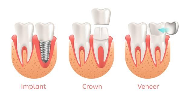 bildbanksillustrationer, clip art samt tecknat material och ikoner med tänder procedur implantat faner crown restaurering - tandblekning