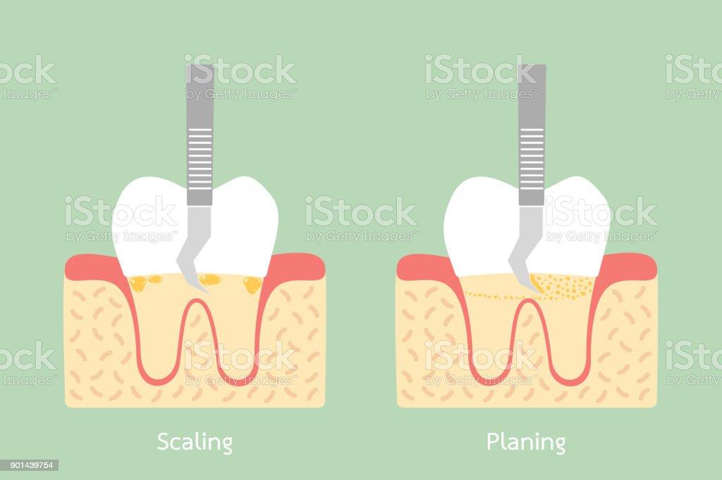 Vetores De Dentes Dimensionamento Remoção De Placa
