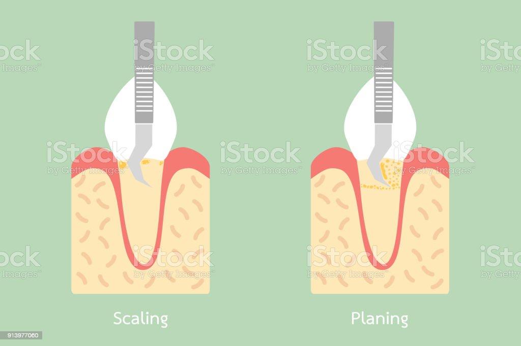Zähne Skalierung Zahnbelagentfernung Anatomie Struktur ...